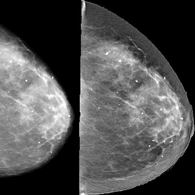 mamogram-mammography-diagnostic-mammogram