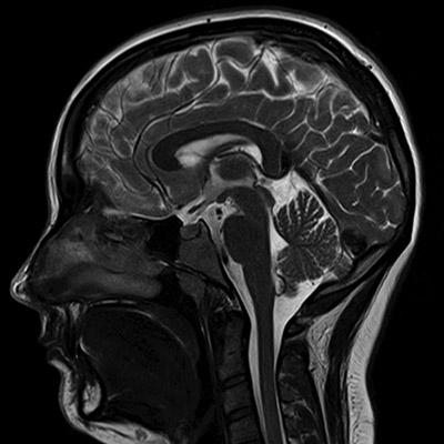 mri-scan-brain-scan